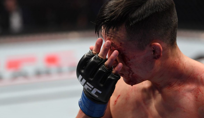Корейский Зомби после поражения: «Я просто дурак»